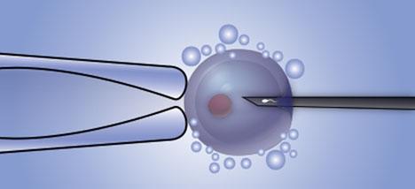 Kvinnan fick tvillingar med sperma från en okänd donator, istället för från sin man.
